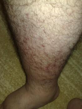 0acdb6210497539 - Bacağımdaki şişme ve kızarıklık ne olabilir?
